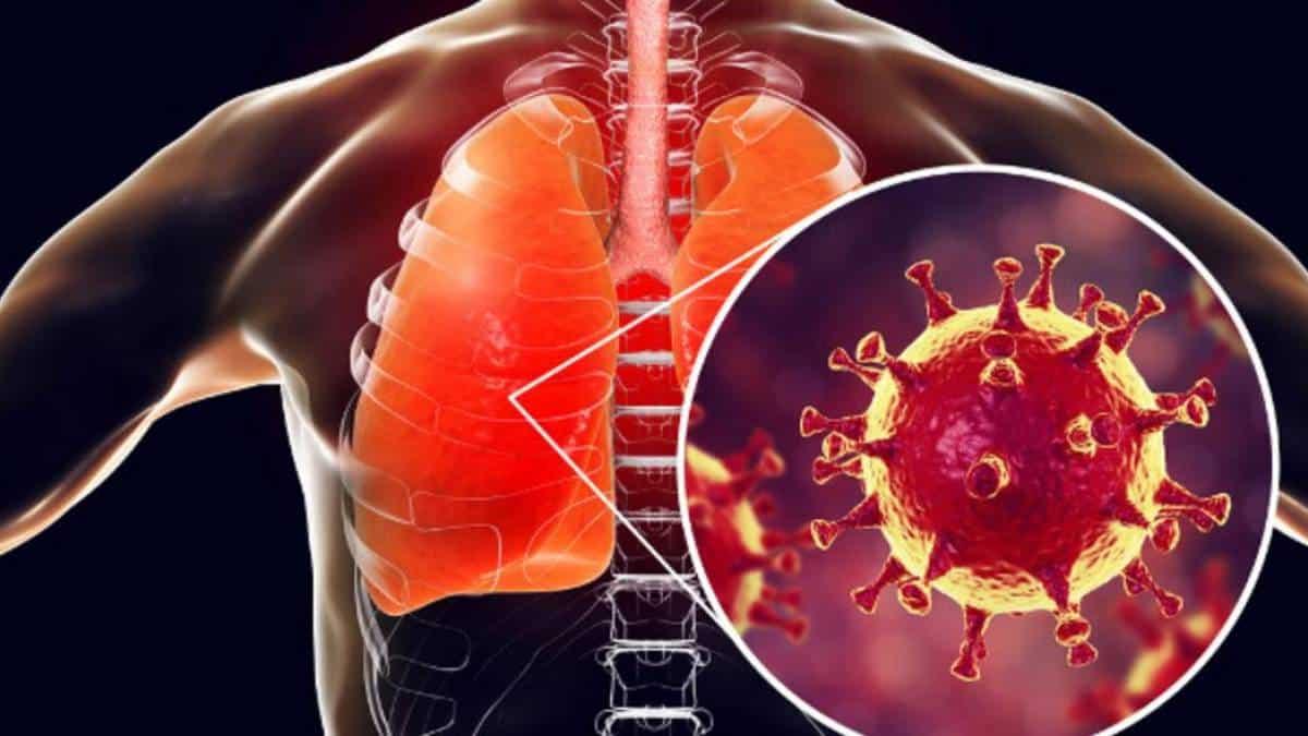 Alerta: curados de Covid-19 podem ter graves consequências