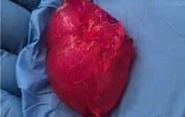 Empresa de biotecnologia imprime mini coração humano