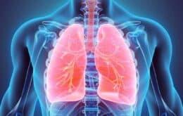 Colocar pacientes de bruços pode ajudar em casos graves da Covid-19