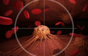 Inteligência artificial prevê câncer com anos de antecedência