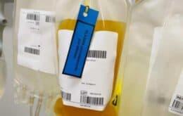 EUA autorizam o uso de plasma convalescente para tratar a Covid-19