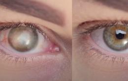 El implante de córnea sintético ayuda al ciego a recuperar la visión