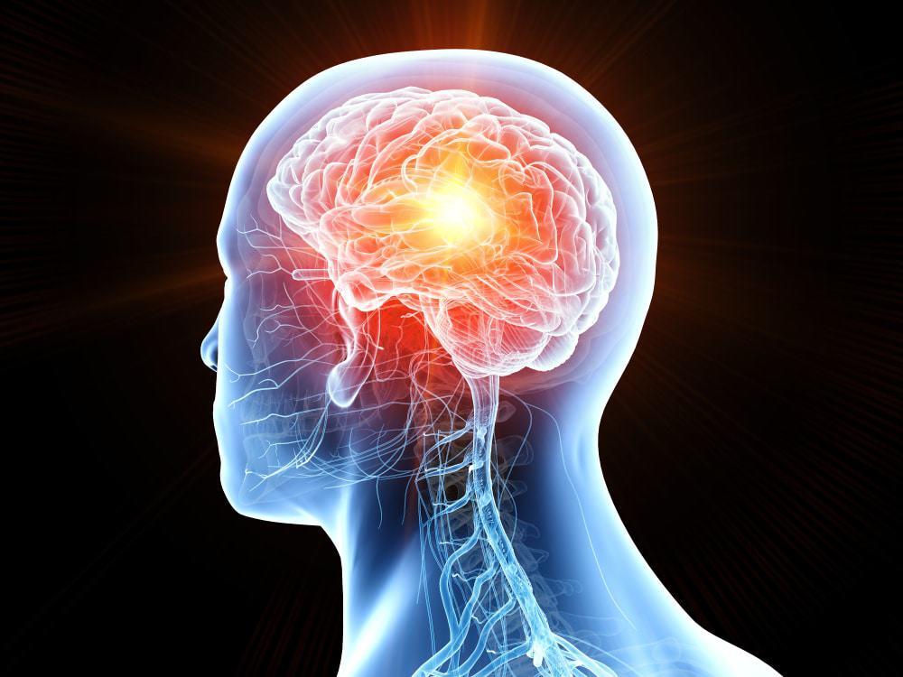 Ilustración de daño cerebral