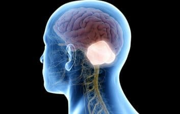 Researchers develop technique capable of killing brain tumors from hunger