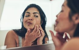 Americanas espremem mais de 4 mil acnes durante a vida, diz pesquisa