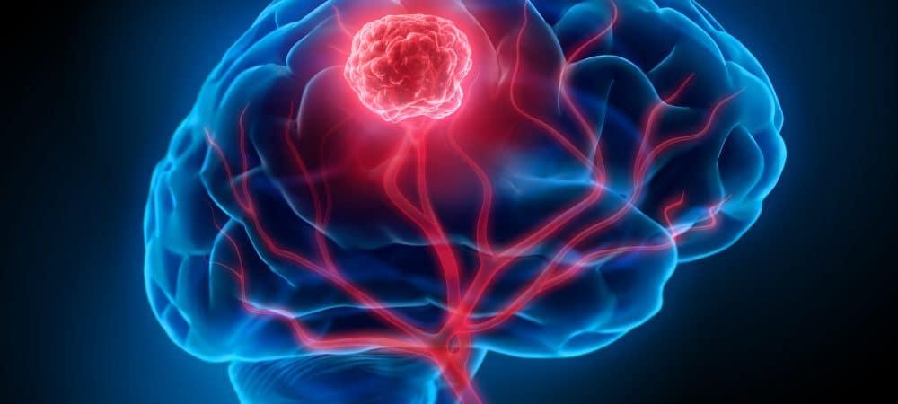Ilustración de cáncer de cerebro