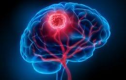 Estudo aponta estruturas cerebrais que podem ajudar no combate ao câncer no cérebro