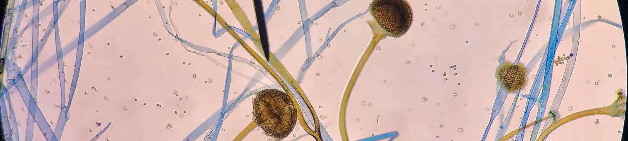 Fungo 'Rhizopus Oryzae' visto em microscópico