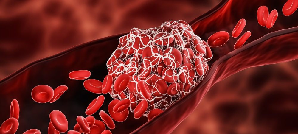 blood-clot-or-thrombus-blocking-the-red-blood-cells-stream-within-an-picture-id1297034329-1000x450