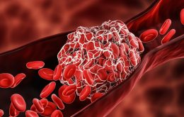 Trombose causada por vacina contra a Covid-19 requer tratamento imediato