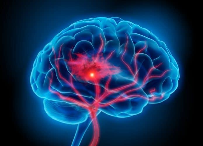Covid-19: pessoas com doenças neurológicas crônicas são inclusas no grupo prioritário de vacinação