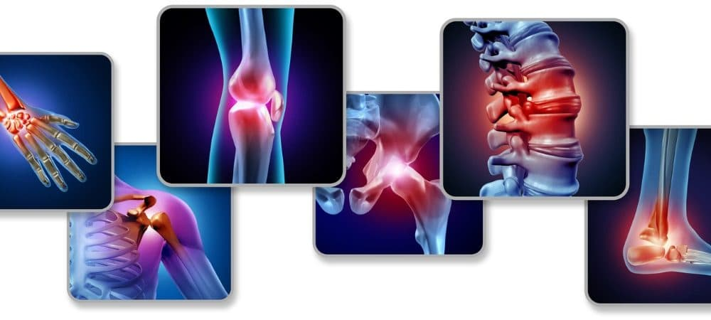 pain-of-the-joints-picture-id1171639646-1000x450