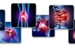 Fibromialgia: entenda o que é a doença das dores