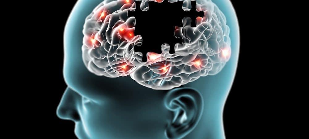 Representação gráfica de doenças degenerativas cerebrais