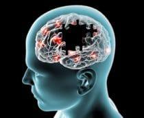 Alzheimer: proteína do fígado pode ser crucial na origem e progressão da doença