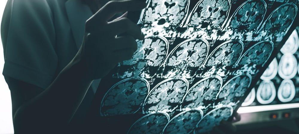 Alzheimer. Imagem: Shutter-e-Atthapon