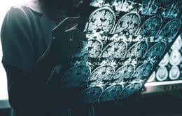 Cientistas descobrem exame para detectar o Alzheimer
