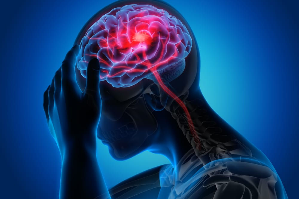 Representação gráfica de uma crise de cefaleia