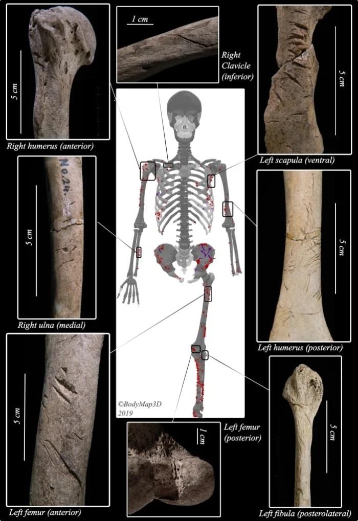 Ossos de homem mordido por tubarão há 3.000 anos