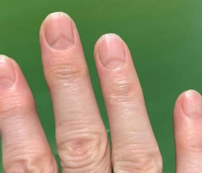Sinais nas unhas podem indicar se você já teve Covid-19. Imagem: Artigo National Center for Biotechnology Information