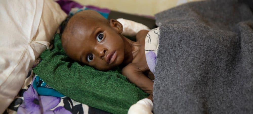 Criança com desnutrição