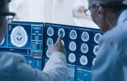 Segundo oncologista, pandemia afetou os diagnósticos de câncer