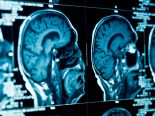 Trabalhador pode ter contraído doença cerebral mortal em laboratório