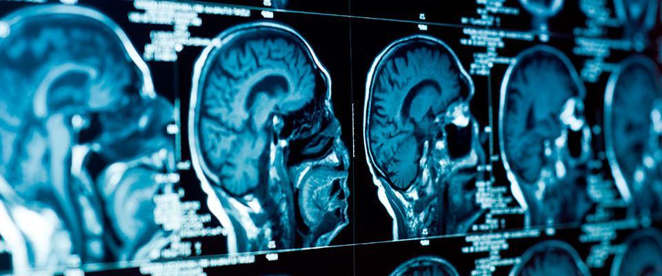 Imagens de um exame cerebral