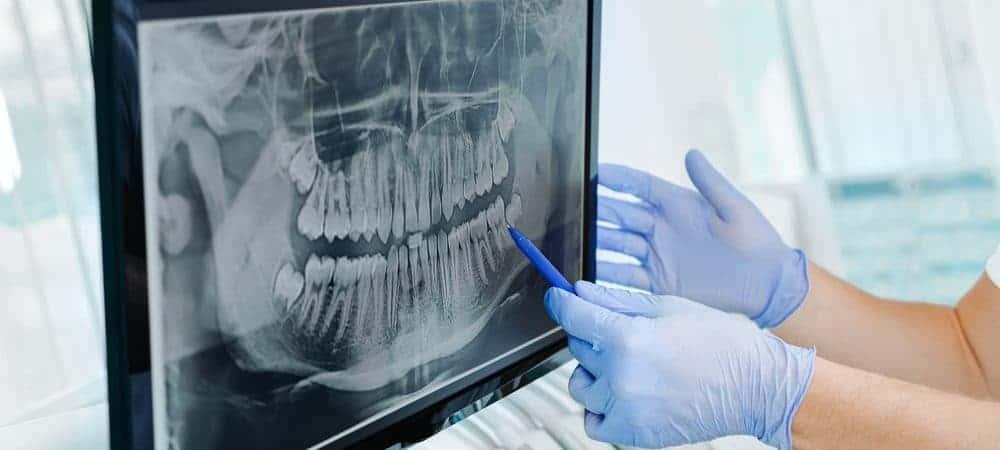 Radiografia de uma arcada dentária