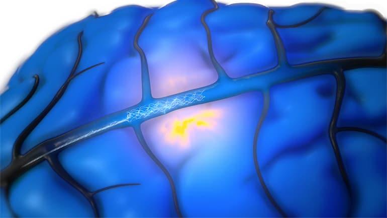 Implante cerebral Stentrode