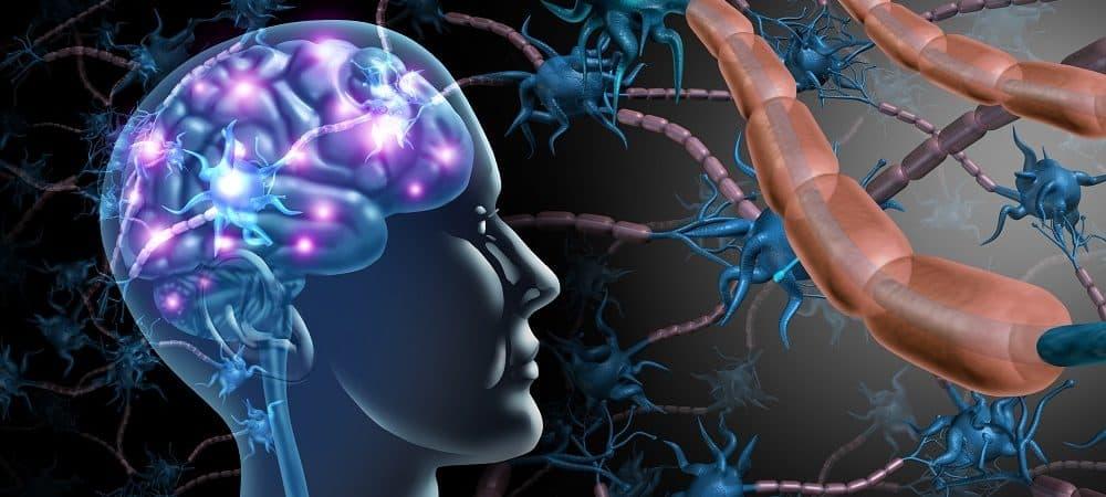 imagem sistema nervosos esclerose múltipla
