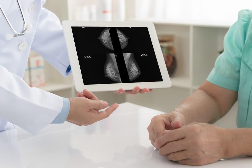 médica mostrando exames de câncer de mama