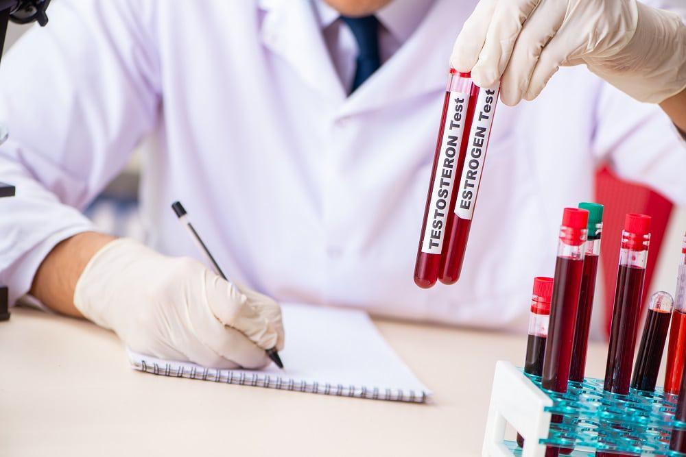 médico segura teste de testosterona e estrogênio