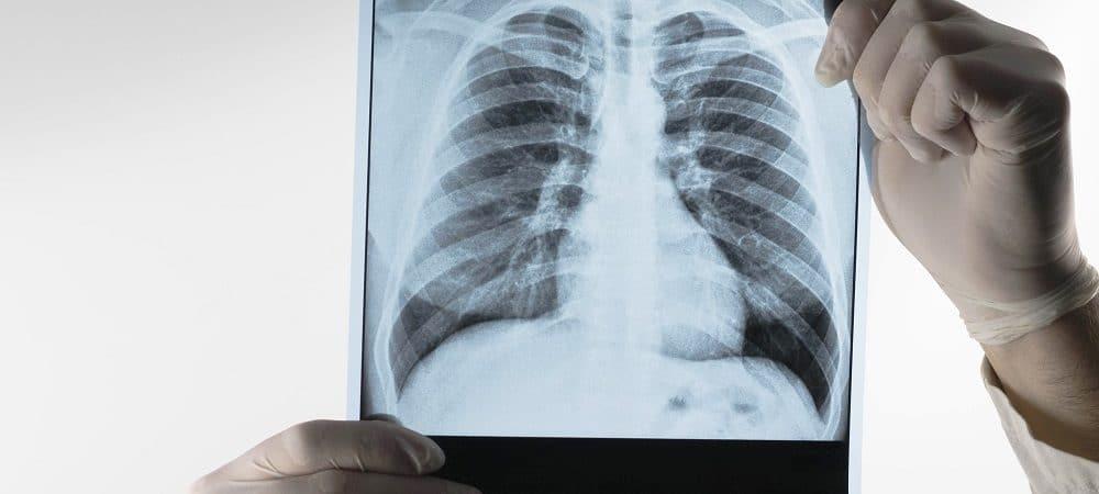 Tuberculose. Imagem: Shutterstock