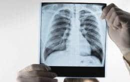 Tuberculose: um quarto da população mundial sofre da doença, diz estudo