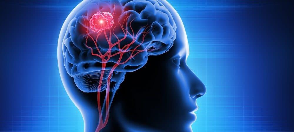 Imagem 3D homem com tumor cerebral