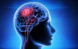 Capacete magnético reduz em 31% tumor cerebral e pode ser o primeiro tratamento não invasivo do mundo