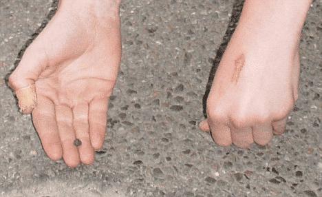 Alemão de 14 anos teria sido atingido por um meteorito do tamanho de uma ervilha (em sua mão direita), o que teria lhe causado o ferimento, semelhante a uma queimadura em sua mão esquerda