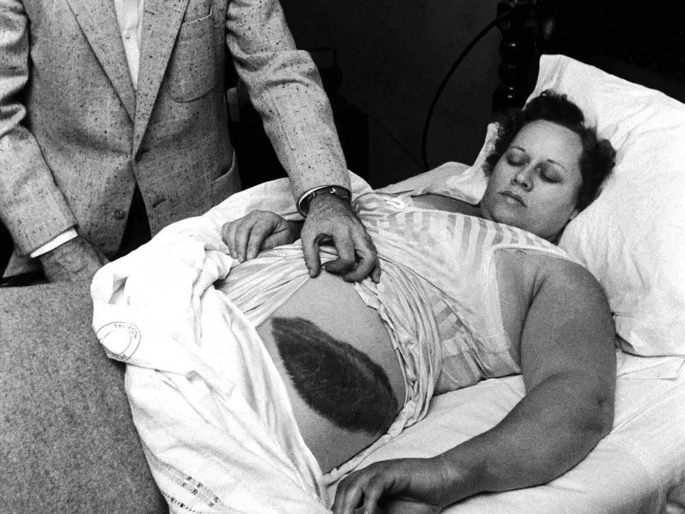 Ann Hodges foi atingida no quadril por um meteorito de 4 kg, lhe causando um grande hematoma