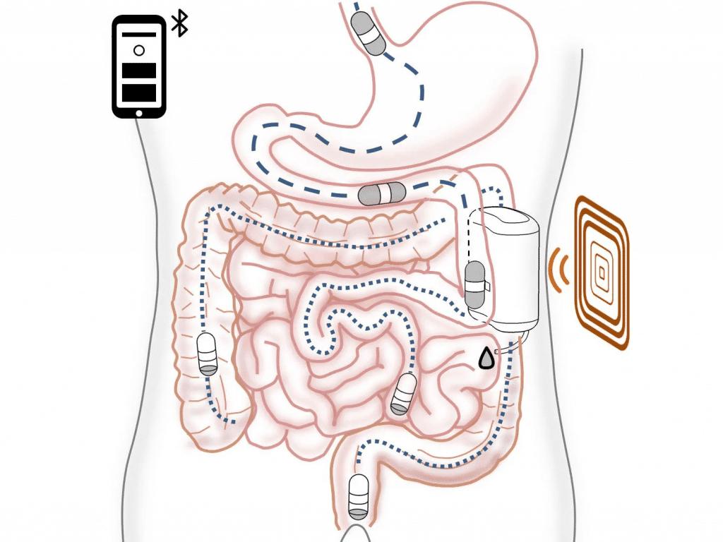 Esquema gráfico mostra como funciona o novo tratamento para o diabetes, que instala uma dock station dentro do corpo do paciente