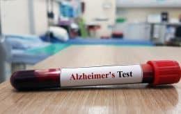Pesquisadores desenvolvem exame de sangue capaz de detectar Alzheimer